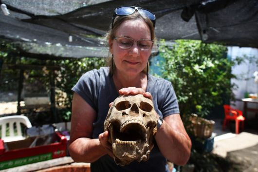Sherry Fox Antropologista e Patologista Ascalom